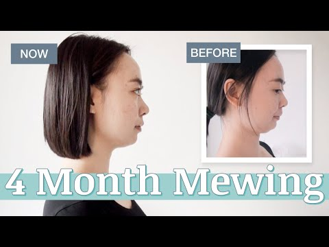 4 Months Mewing at Age 28 – Changes I've Observed + Answering Your Questions