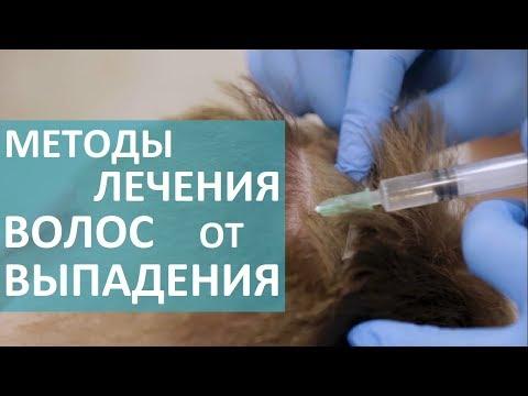 Трихолог о выпадении волос. 💇 Врач - трихолог расскажет о методах лечения выпадения волос.