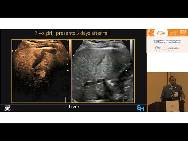 Pediatric Intravenous Contrast Enhanced Ultrasound (CEUS)