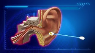 Stop cleaning wax out of your ears, U.S. doctors say