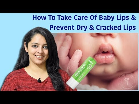 How To Take Care Of Baby Lips & Prevent Dry & Cracked Lips