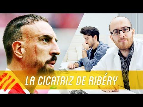 ¿Cómo se hizo Ribéry la cicatriz de la cara?