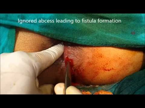 Perianal Abcess with Fistula in ano - Repaired during same surgery - Dr Ashish Bhanot