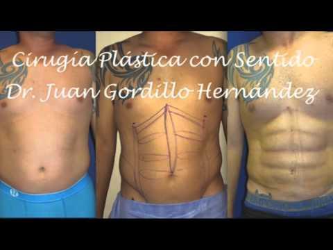 LIPO 4D PARA HOMBRES EN GUADALAJARA, MEXICO
