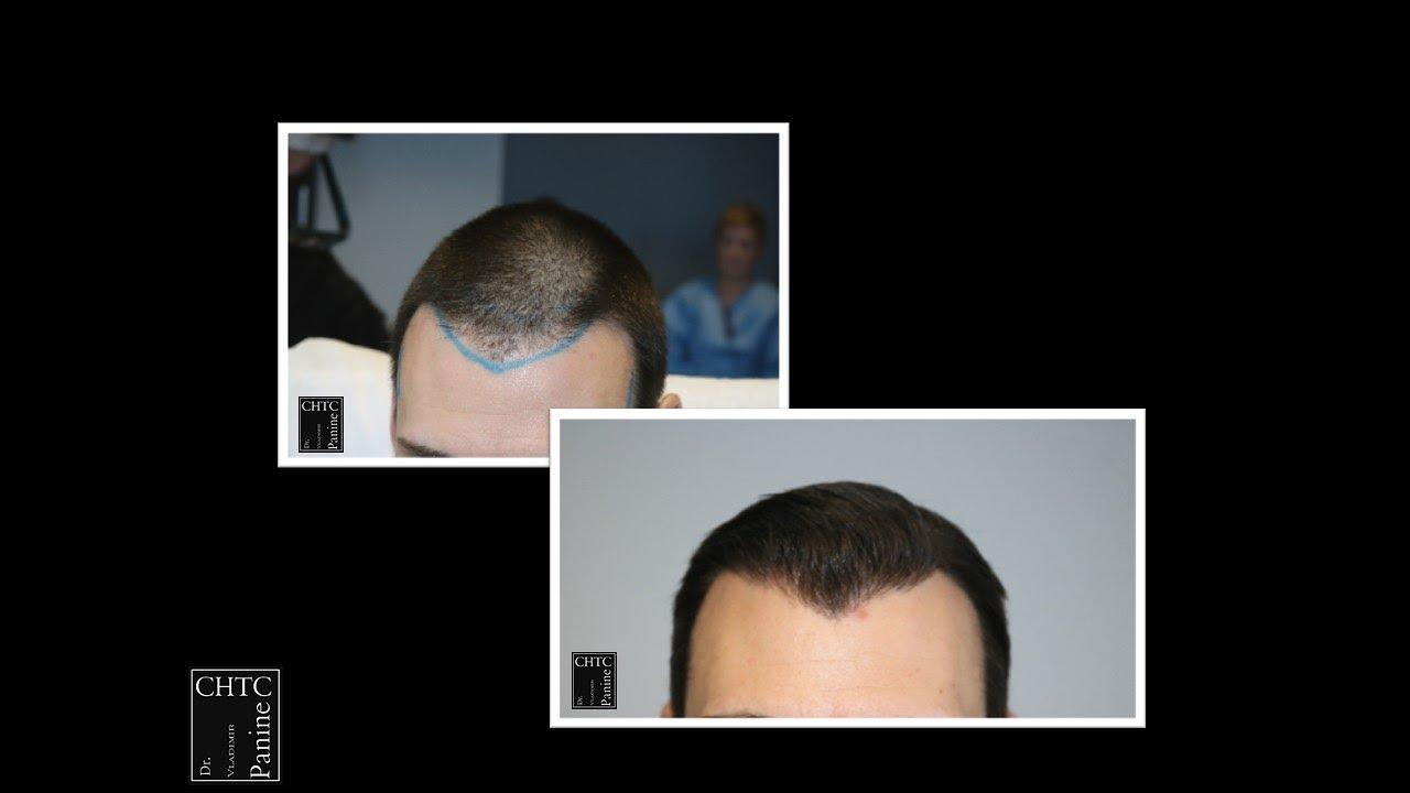 Chicago Hair Transplant Clinic - FUE Hair Restoration ...