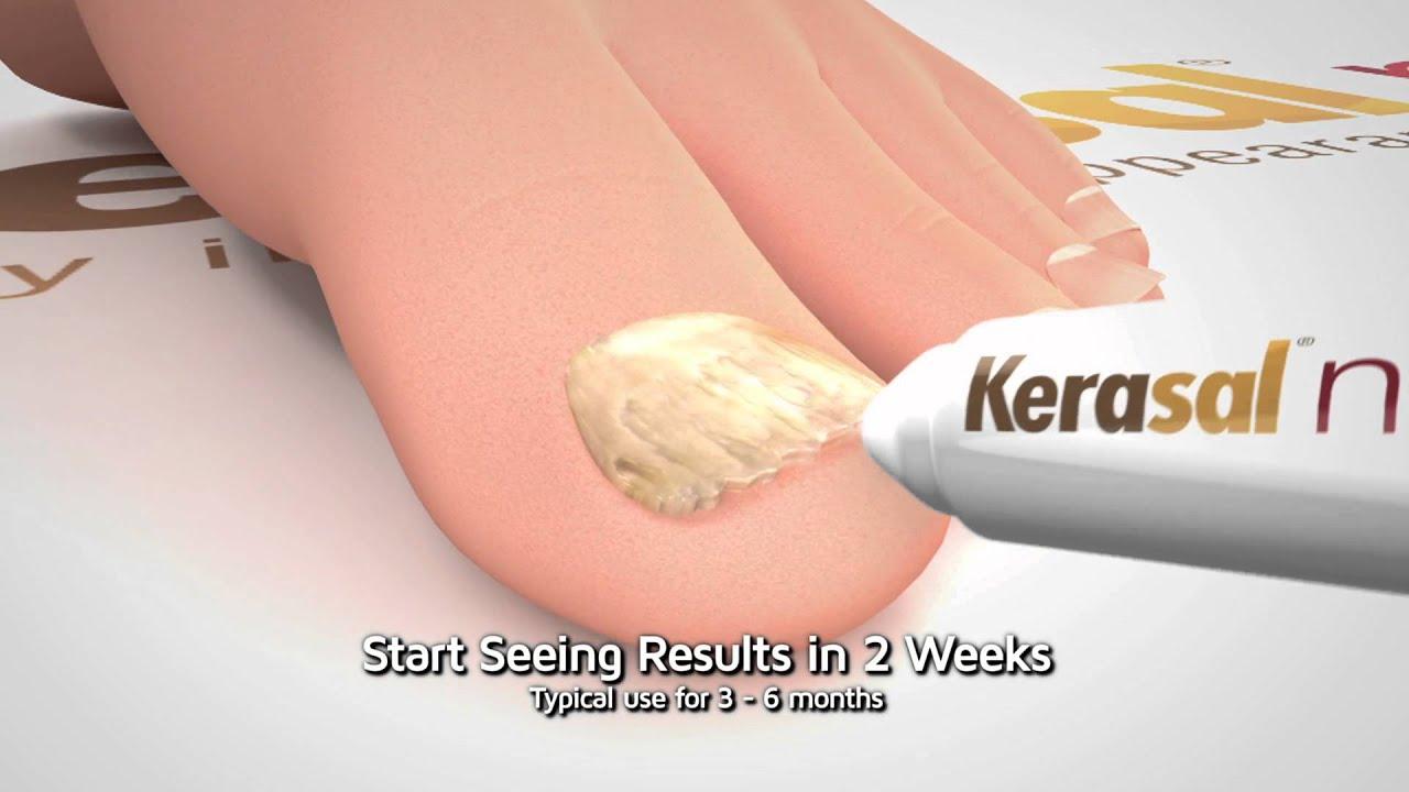 Kerasal Nail: Restore Healthy Nail Appearance (10 Sec) - YouTube