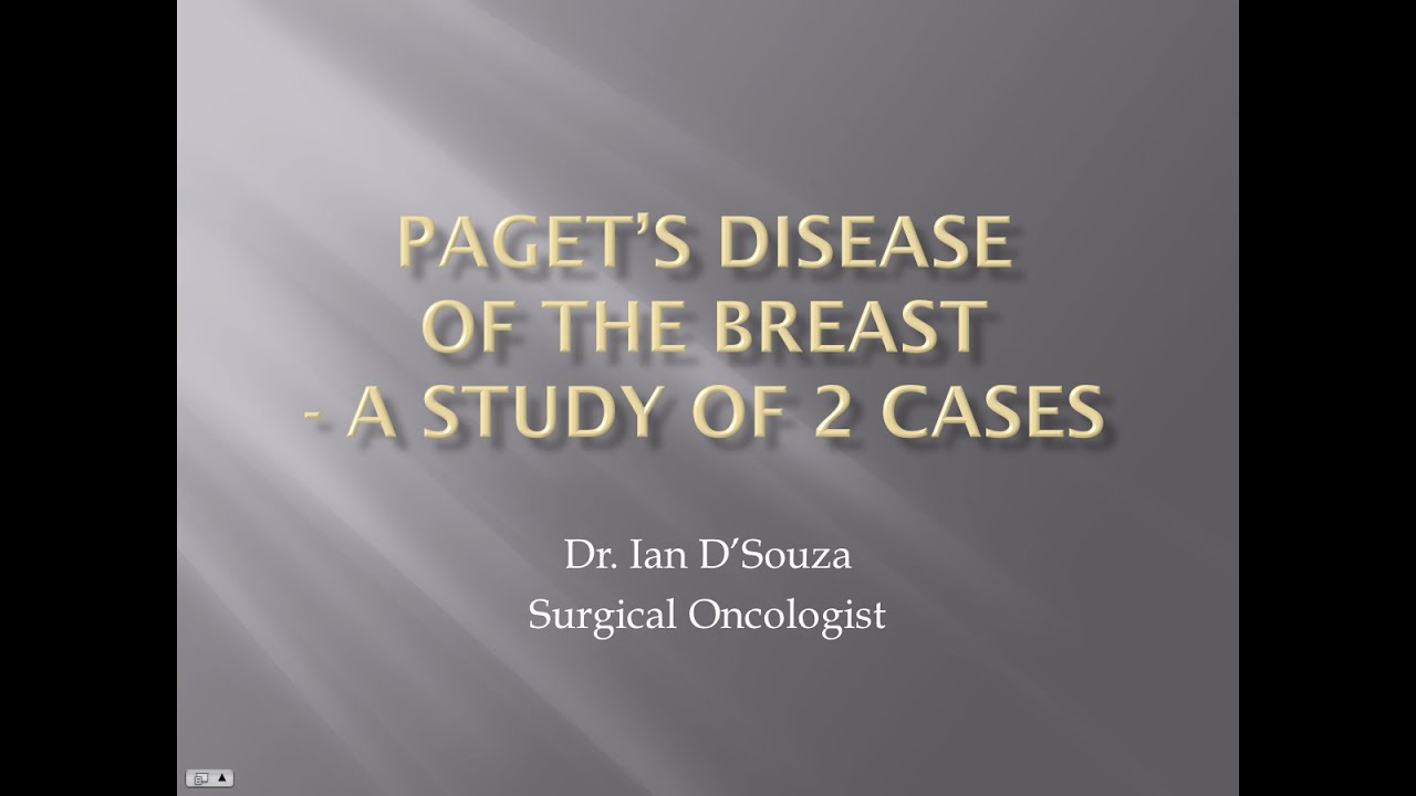 Paget's disease - YouTube