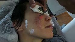 hqdefault - Acne Scar Facial Singapore