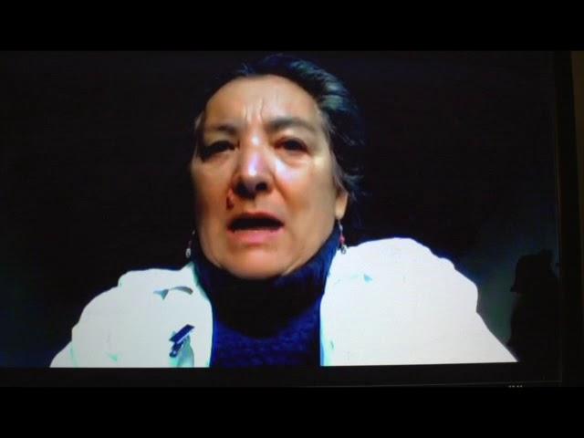 Dott ssa Marchese: Importanza della visita dal genetista