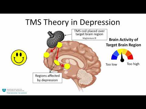 Transcranial Magnetic Stimulation: A New Treatment Approach for Psychiatric Disorders Mp3