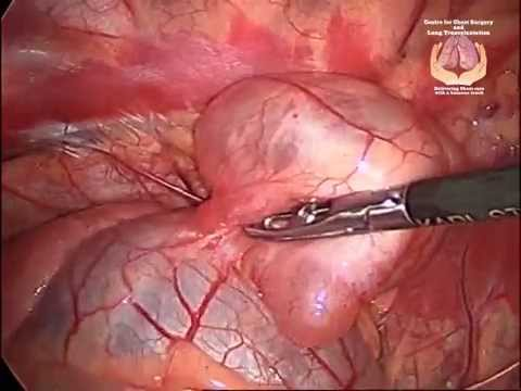 Thoracoscopic (VATS) Excision of Pericardial Cyst in a 4 Year Old Child