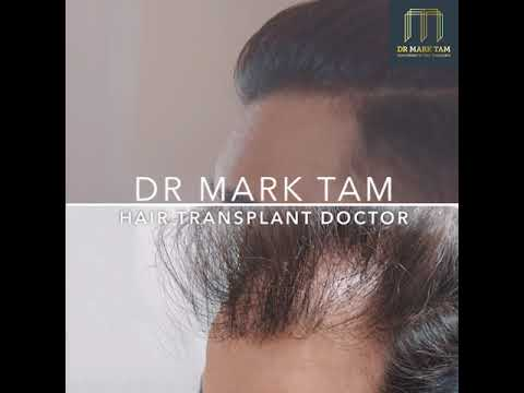 Frontal Area Hair Loss, Restored by FUE Hair Transplant