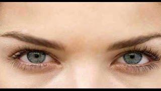 وداعاً لإنتفاخات تحت العيون | هل ممكن ازالة انتفاخ تحت العين؟ | الإنتفاخات تحت العين و التخلص منها