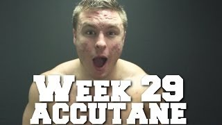Week 29 of Accutane: Redness, Ice Pick Scars & New Cysts