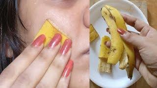 Sie rieb sich Bananenschalen in ihr Gesicht und die Pickel waren verschwunden