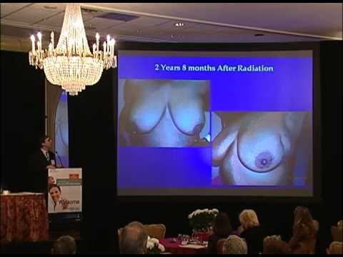 Penn Women's Cancer Conference - 20th Life After Breast Cancer (1 of 2)