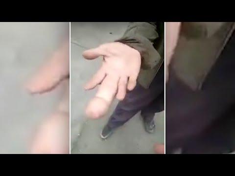 Dieser Mittelfinger ist etwas ganz besonderes!
