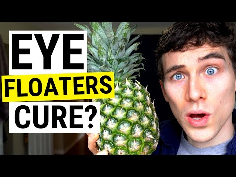 Eye Floaters No More! New (Natural) Eye Floaters Treatment Research   Doctor Eye Health