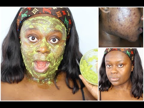 hqdefault - Avocado For Face Acne