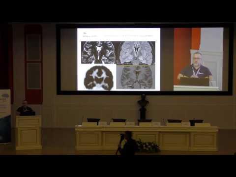 Часть 1. Конференция ЭПИЛЕПСИЯ 2018 'Прехирургическая диагностика и хирургическое лечение эпилепсии'