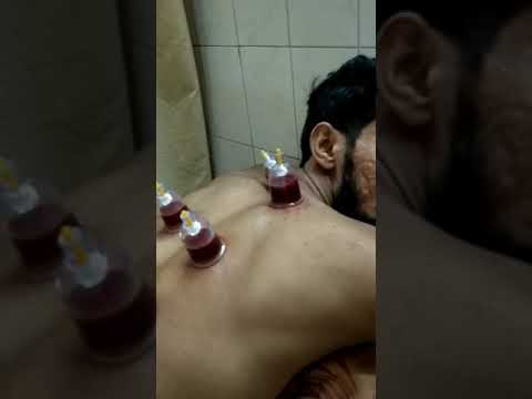 Hijama cupping therapy for All Skin Problems | Acupuncture Treatment in Delhi | Call 9810717350