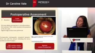 Prospective study: Astigmatism management in cataract surgery with Precizon by: Dr C. Vale