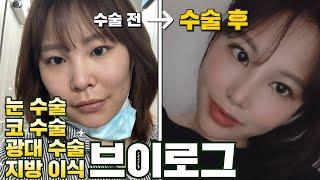 눈 수술/ 코 수술/ 광대 수술/ 지방이식 리얼 수술 …