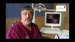 Dr. Fernando Autran - Estética dental con Carillas de Composite