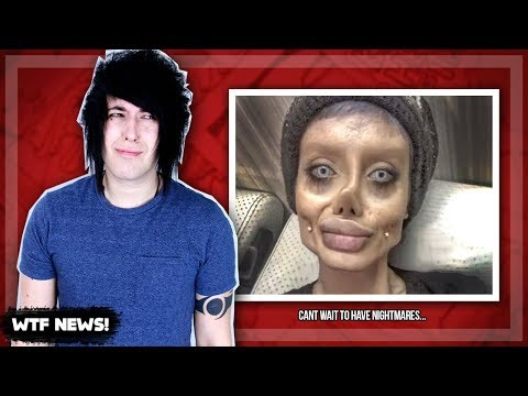 WOMAN'S PLASTIC SURGERY GOES HORRIBLY WRONG!! [WTF NEWS!]
