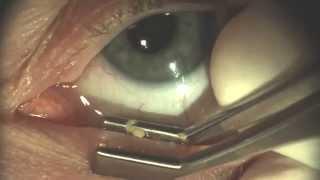 マイボーム腺 - Meibomian gland