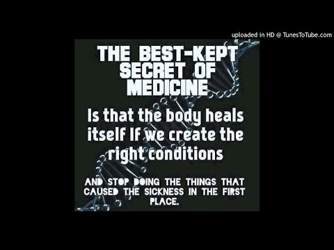 278 Prostate cancer PSA 83 20 years back pain Scleroderma Migraines headaches Heart failure