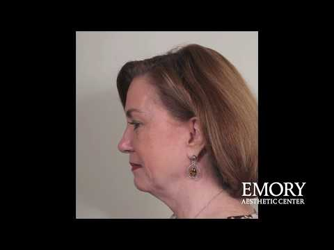 Can You Have A Neck Lift Without A Face Lift At Emory Aesthetic Center?