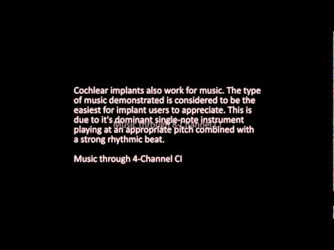Cochlear implant: simulation on speech and music