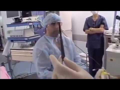 LAUP: лазерная увулопалатопластика