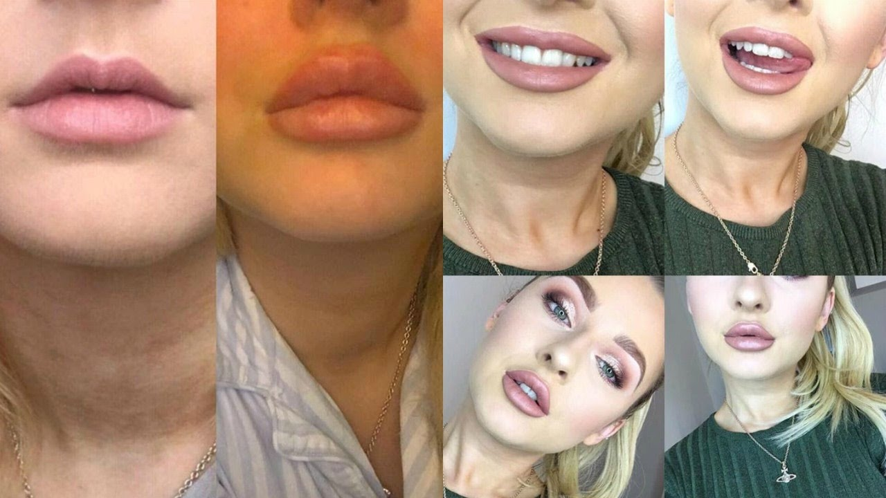 Lip Injection Experience Before And After