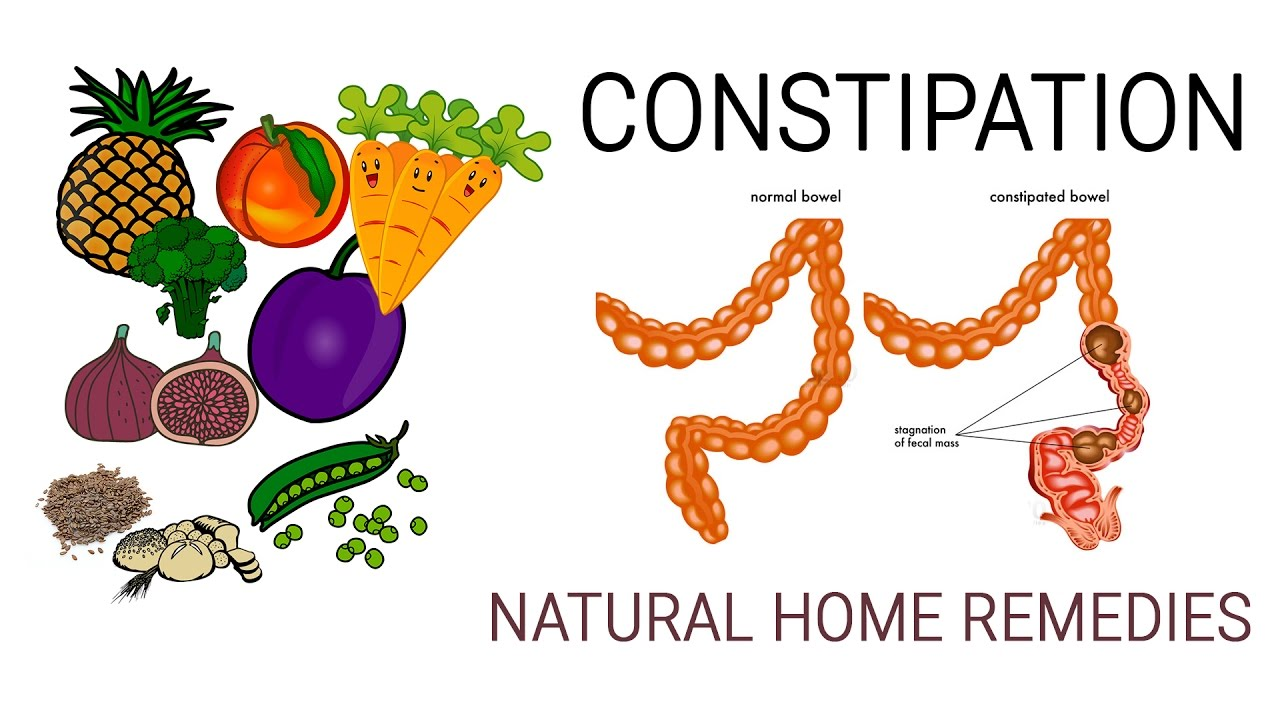 The 17 Best Foods to Relieve Constipation