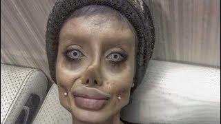Elle voulait ressembler a Angelina Jolie