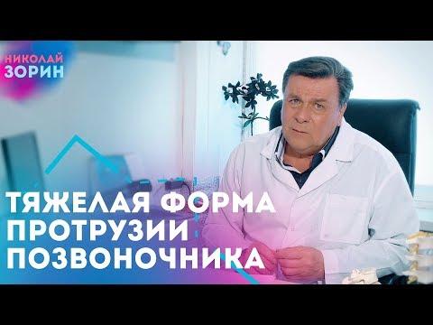 Тяжелая форма протрузия межпозвонковых дисков. Нейрохируг Зорин Николай Александрович