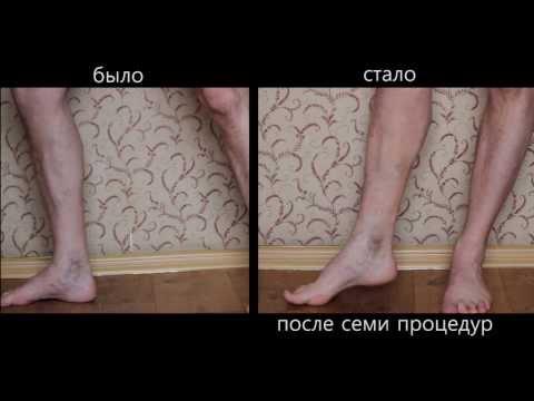 Лечение варикоза без операции. Видео №4. Кировоград Медицинский центр Материнка