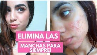 2 MASCARILLAS para ACNE Y MANCHAS | Daniela Casares
