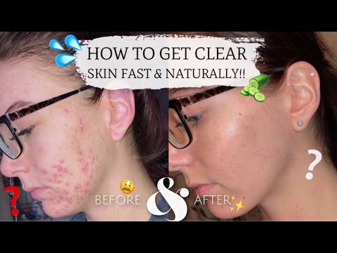 How To Achieve Acne Free Natural Glowing Skin!! My Skincare Routine!!
