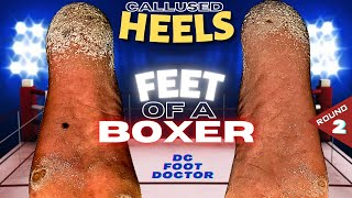 Feet of a Boxer: Knocking Out Painful Calluses, Round 2: The Heels