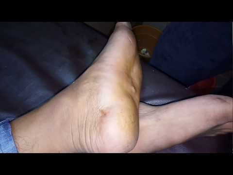 Foreign body infection....removed