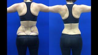 Liposuction ile Yağ Aldırma - Vanity Klinik