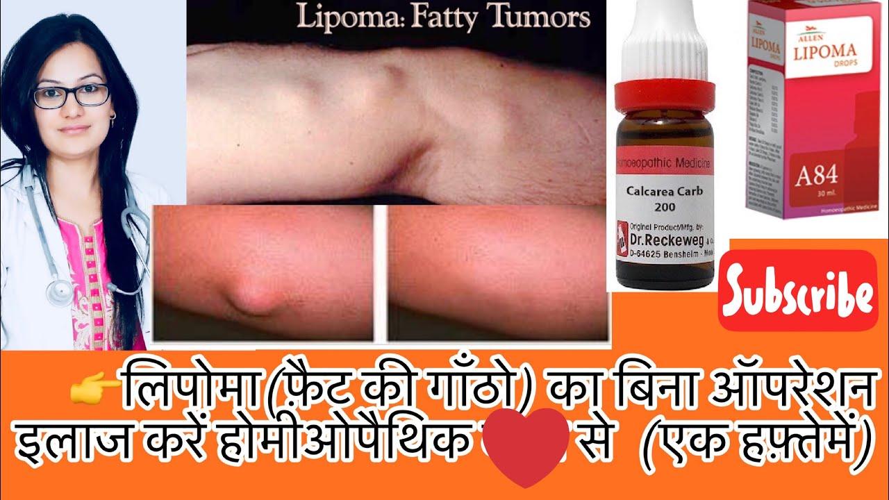 फ़ैटी Tumor(चरबी की गाँठे)-What Is Fat Lipoma