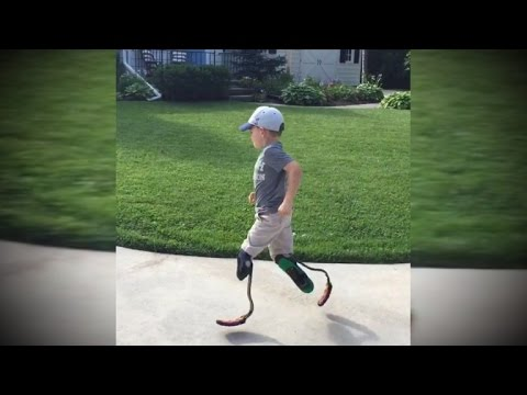 5-Year-Old Boy Gets Running Blades Thanks To Boston Marathon Bombing Survivor