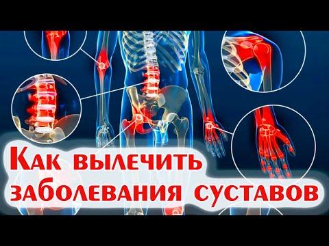 Пиелонефрит - клиника (симптомы), диагностика, лечения