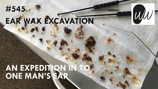 545 - Ear Wax Excavation: An Expedition Into One Man's Ear