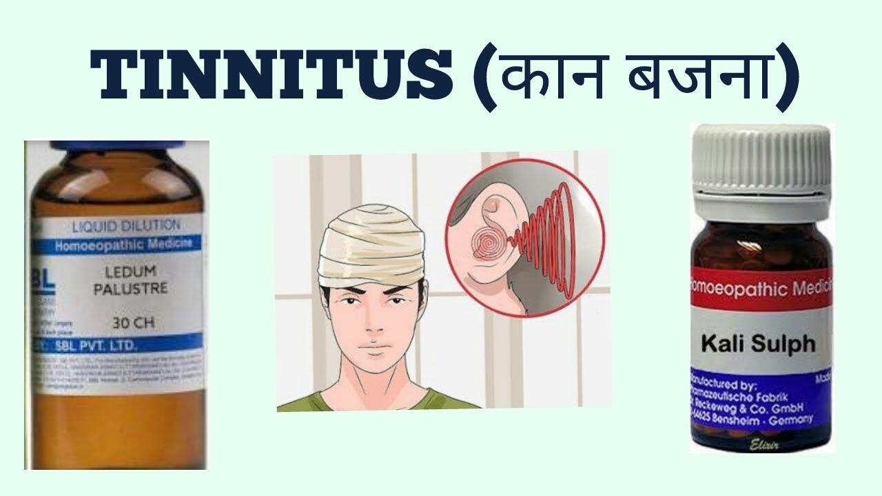 TINNITUS(कान बजना )