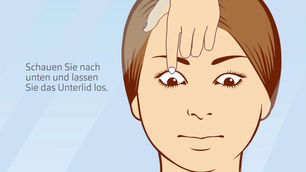 kontaktlinsen herausnehmen probleme